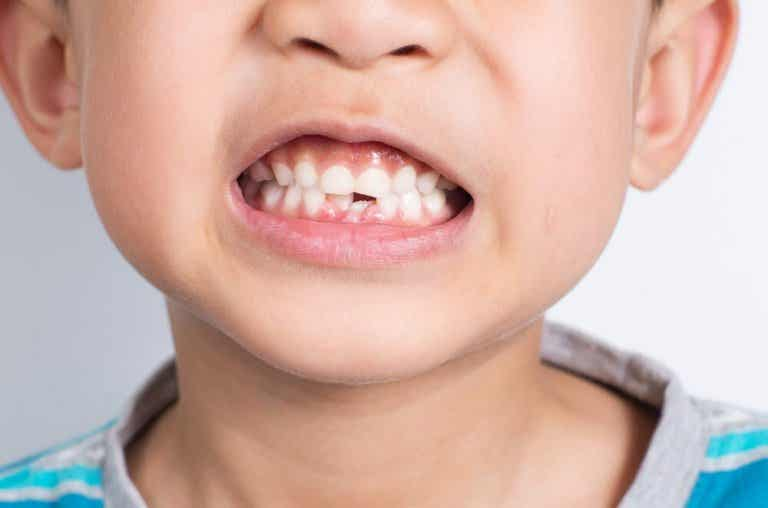 O que fazer se meu filho quebrar um dente?