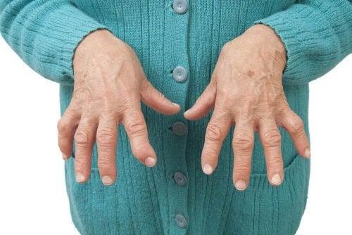 a artrite reumatoide