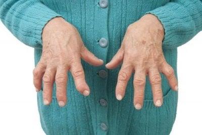 Artrite reumatoide: confira os melhores tratamentos naturais!