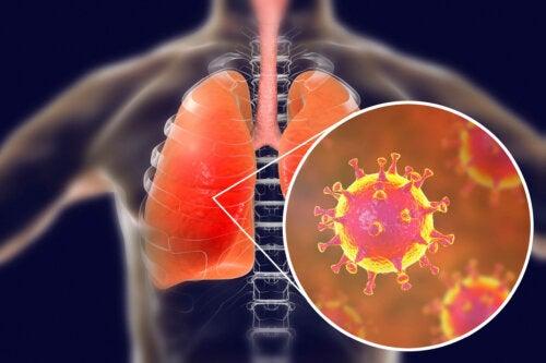 Infecção dos pulmões