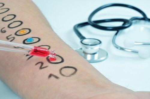 Teste de sensibilidade: Como é realizado oprick test?