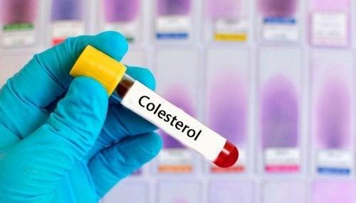 Tratamento do colesterol com plantas medicinais