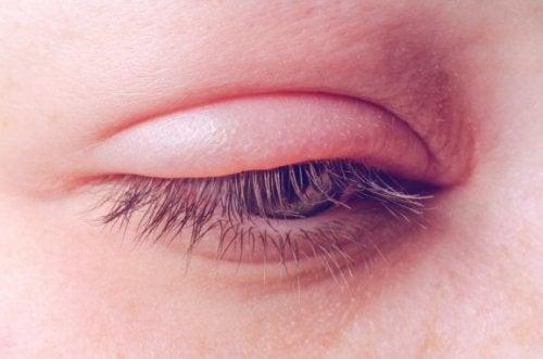 Blefarite: causas, sintomas e tratamento