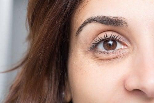 10 dicas infalíveis para evitar bolsas e olheiras