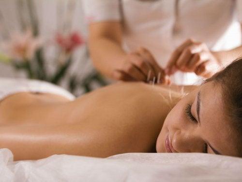 a acupuntura ajuda a insônia
