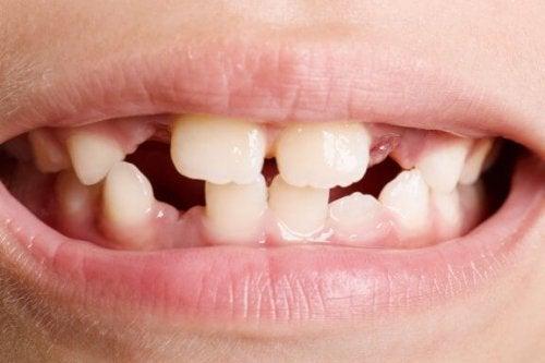 Agenesia dentária: tipos e tratamentos