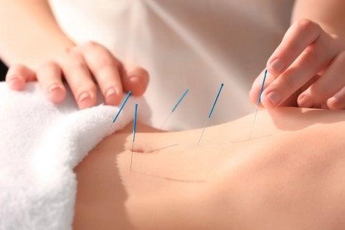 Agulhas fininhas para acupuntura