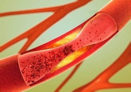 As artérias podem ser obstruídas por coágulos
