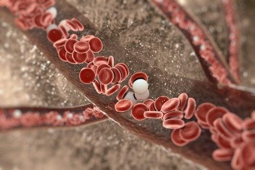Artéria obstruída por colesterol