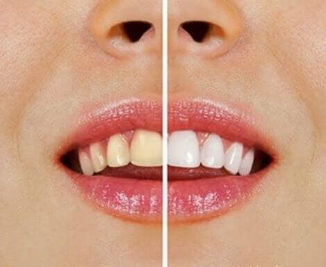 Produtos naturais para branquear os dentes