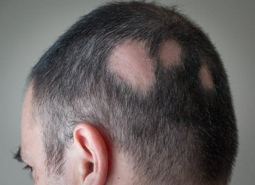 Areas de alopecia