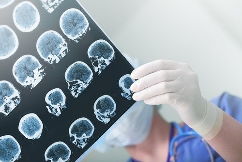 Diferenças entre demência senil e doença de Alzheimer na ressonância