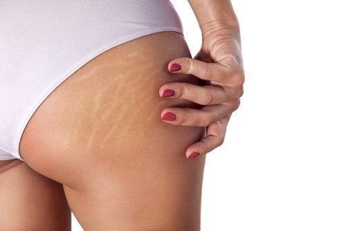 Mulher com estrias na pele