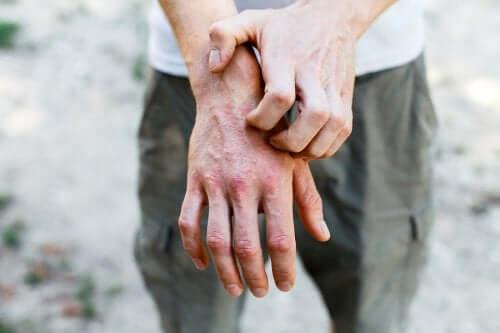 6 preparações caseiras para tratar a dermatite de contato