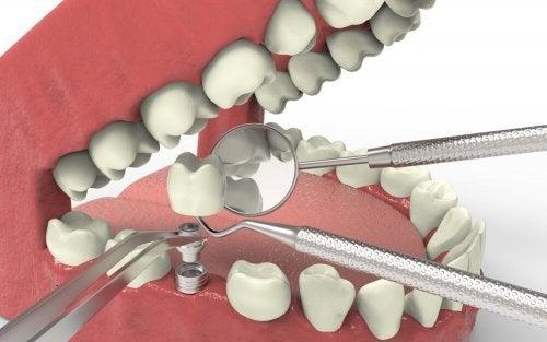 Implante dental ajudaa agenesia dentária