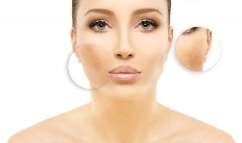Tratamentos para reduzir as manchas no rosto