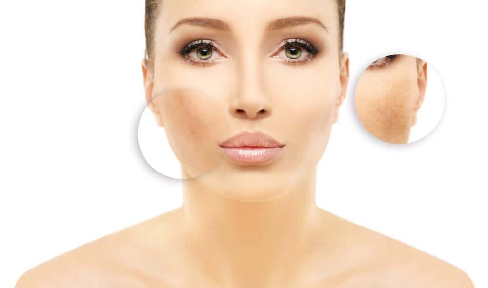 Considerações sobre as manchas no rosto