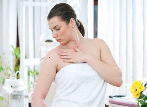 Mulher com melanoma maligno