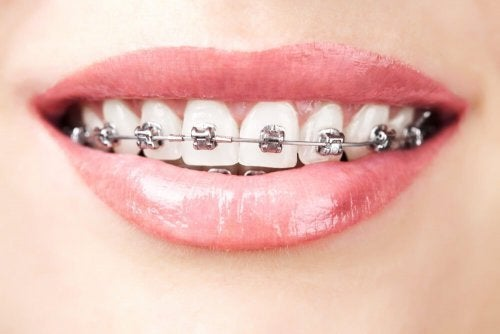 Ortodontia contra agenesia dentária