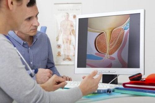Que tratamentos existem para a hiperplasia prostática?