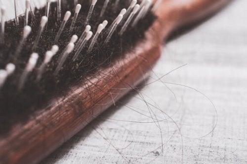 Como tratar a alopecia naturalmente