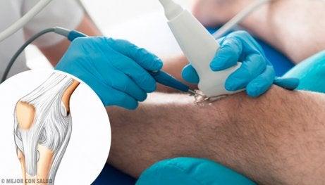 Artroscopia do joelho cirúrgica