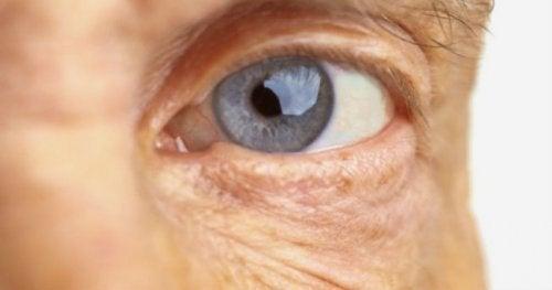 A degeneração macular nos idosos