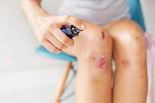 O que fazer e o que evitar ao tratar um ferimento