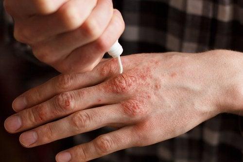 Mãos de pessoa co arttrite