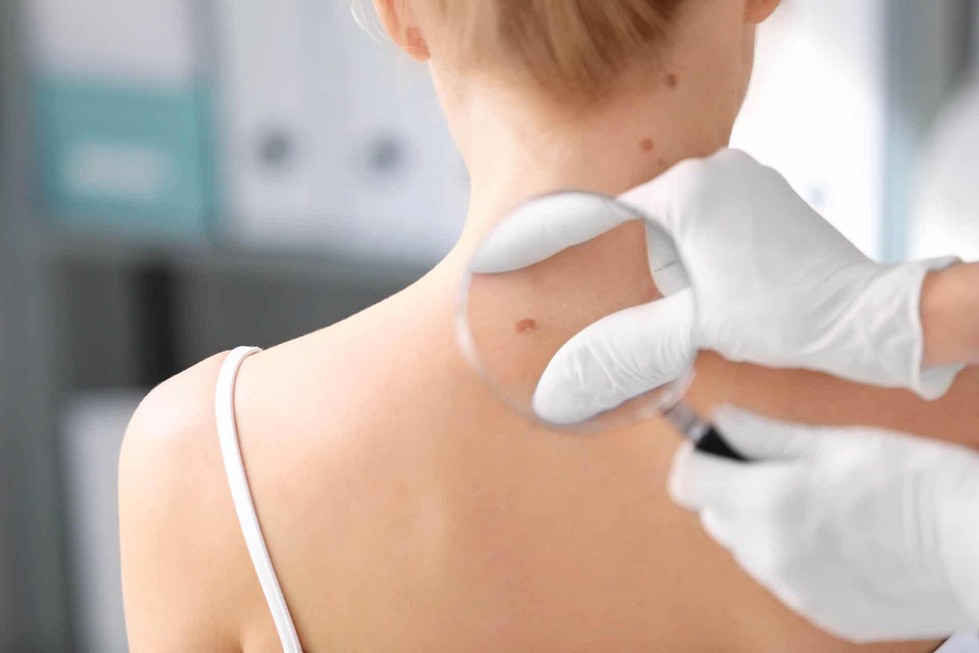O que é o teste ABCDE na dermatologia?