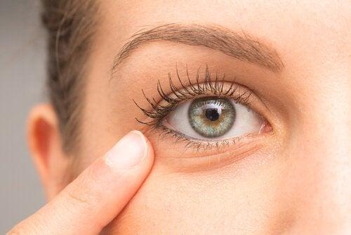 Tratamento caseiro para atenuar as olheiras