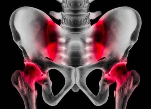 Pubalgia: causas, sintomas e tratamento