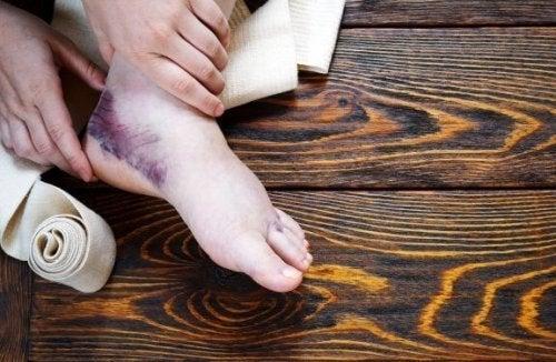 Remédios complementares para torção de tornozelo