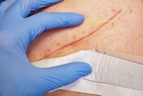 Técnicas básicas para fechamento das feridas