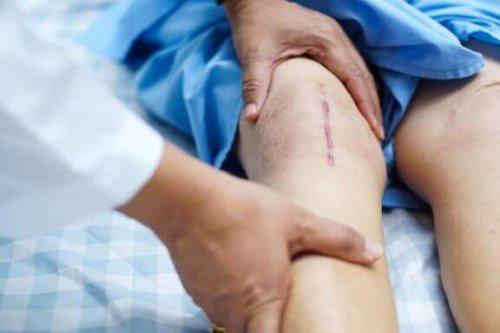Transplante de cartilagem de joelho: etapa de recuperação