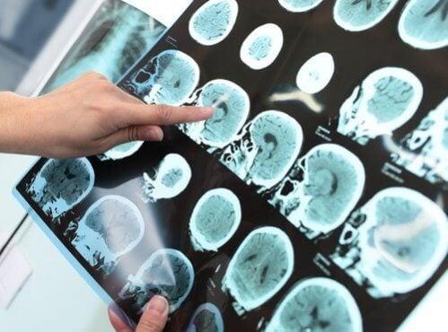 Transtorno neurocognitivo maior