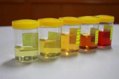Alteração da urina: aspectos a serem considerados