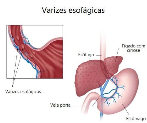 Sinais e sintomas das varizes esofágicas