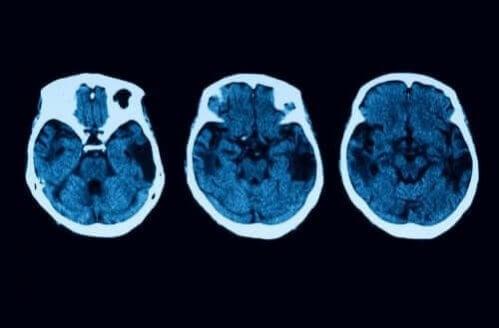 Atrofia cortical posterior: diagnóstico e tratamento