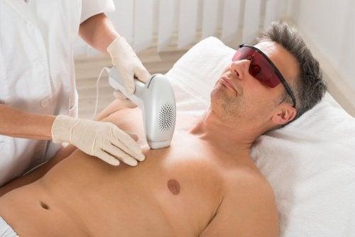 Depilação laser em homem