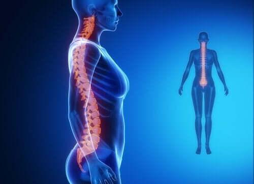 Artrose de coluna: diagnóstico e tratamento