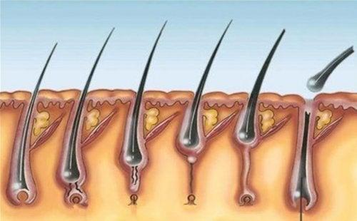 Pilomatricoma múltiplo: principais características