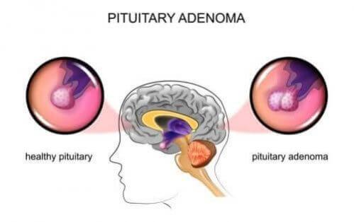 Tumores hipofisários: causas e sintomas