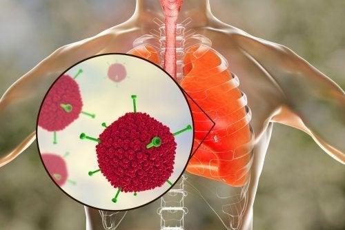 Vírus nos pulmões