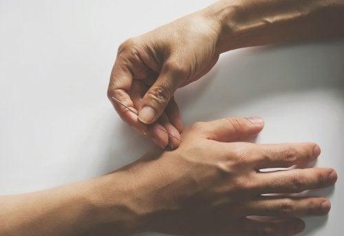 Acupuntura na mão