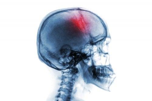 Apoplexia no cérebro