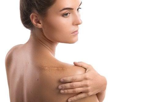 Mulher com ombro operado