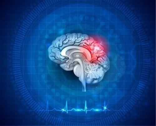 O flutter atrial também pode afetar o cérebro.