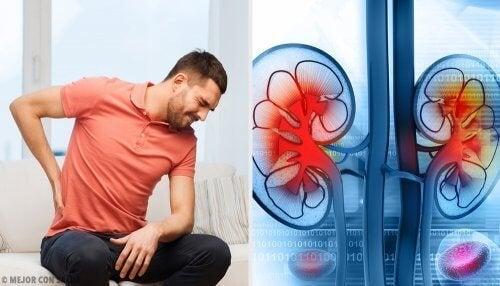 Um abscesso renal pode causar insuficiência renal aguda