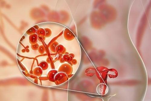 Infecção por mycoplasma genitalium: sintomas e tratamento